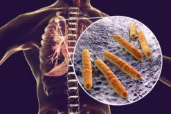 Ermittlungen nach Infektionsschutzgesetz - Erkrankte ist selbst zu befragen
