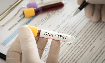 DNA-Identitätsfestellung - Verhältnismäßigkeitsgrundsatz bei der Anordnung